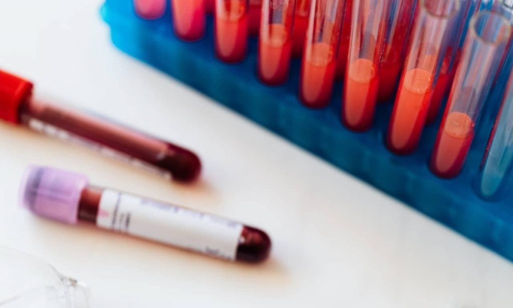 Blood samples to determine blood group and genotype